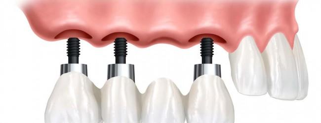 smiles-centre-dental-swindon-implant-3-or-4-teeth