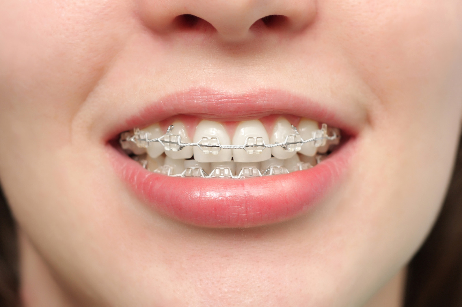 Braces Mouth Protection Protecting Dental Braces